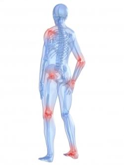 Rheumatoid Arthritis And Exercise Kalev Fitness Solution